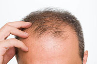 The-causes-of-baldness-in-men